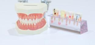 自費への移行は早めに、計画的に@歯科